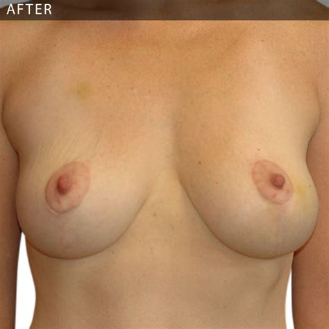 Lift breasts naturally blackdoctor jpg 1000x1000