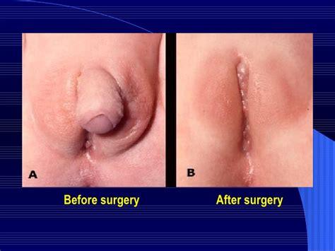Ftm penis surgery stage 1 of 3 sava perovic jpg 728x546