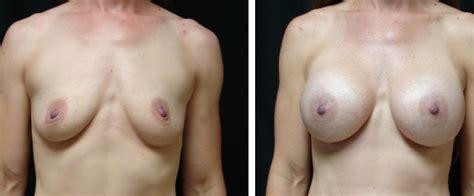 Breast augmentation in virginia beach jpg 576x239