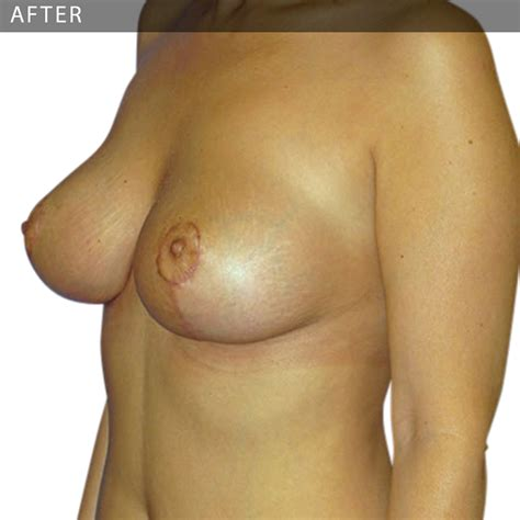 Is it possible to naturally lift breasts doctor answers, tips jpg 1000x1000